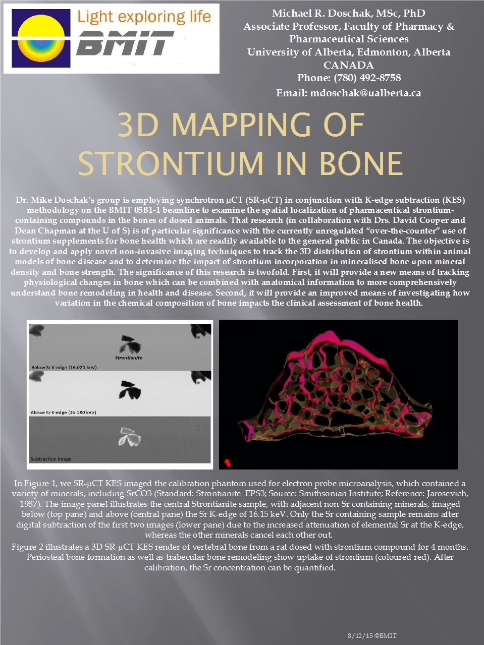 3D Mapping Of Strontium in Bone Image