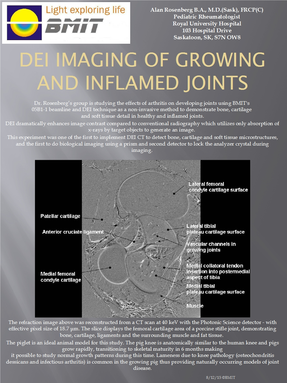 DEI Imaging of Growing and Inflamed Joints Image