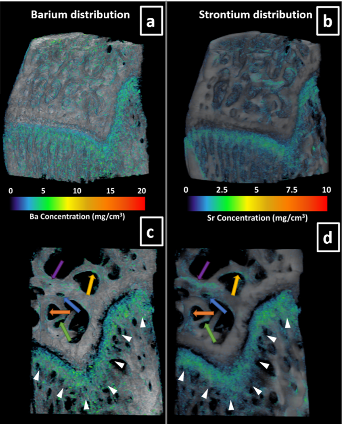 K-edge Subtraction Imaging of Barium and Strontium in Bone Image