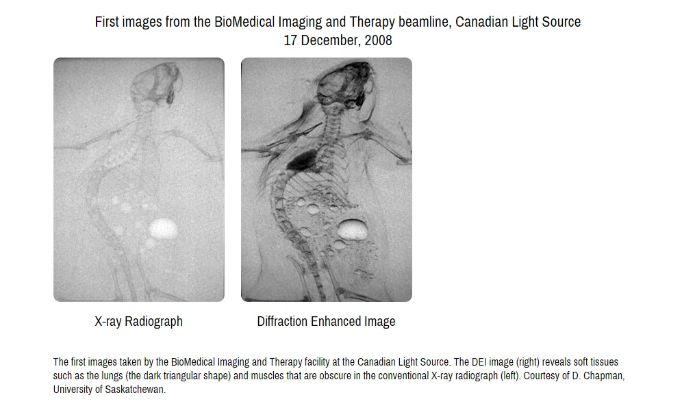 FIRST IMAGES FROM MEDICAL BEAMLINE AT CANADIAN LIGHT SOURCE Image