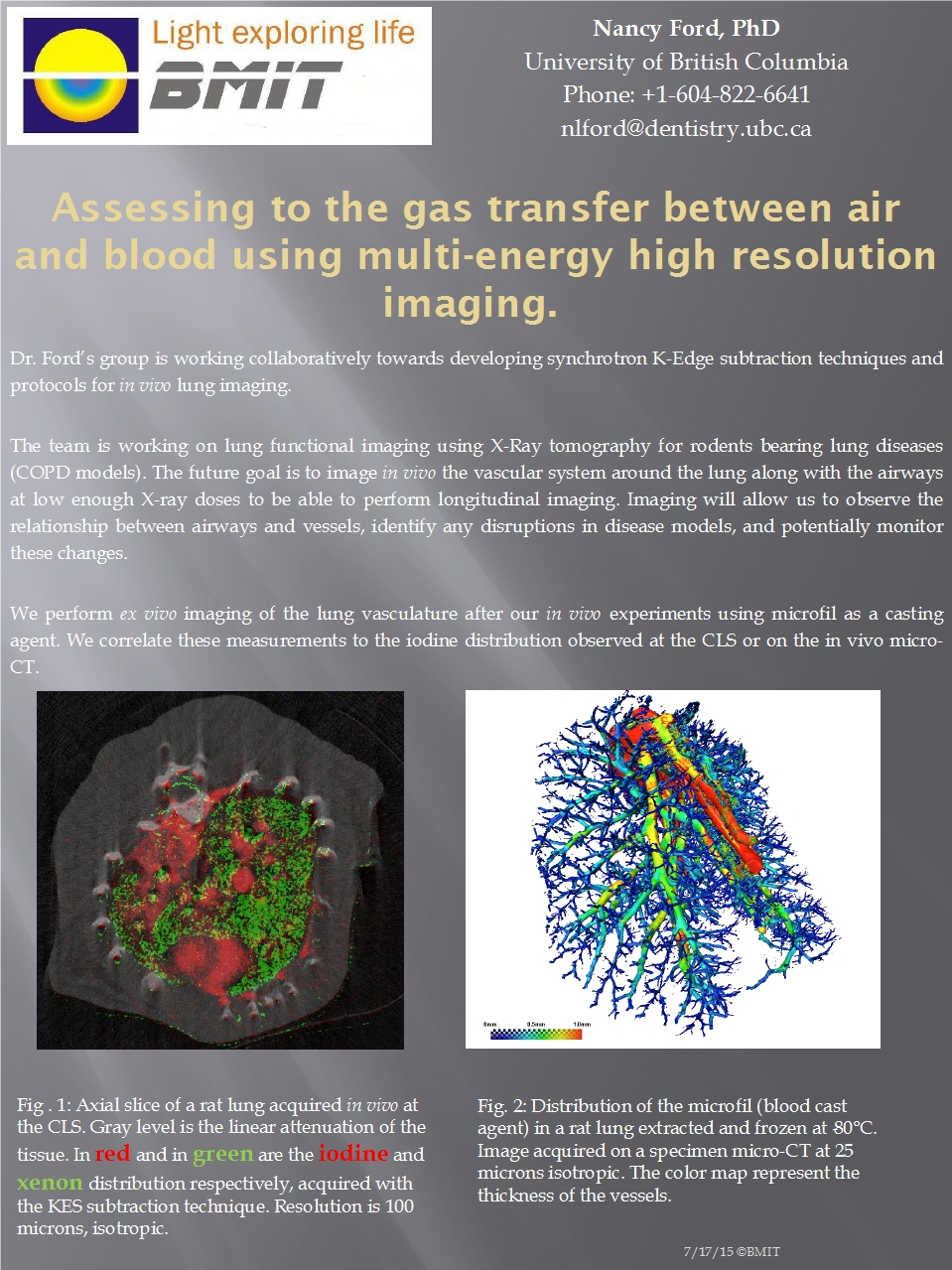 Assessing the Gas Transfer between Air and Blood Using Multi-Energy High Resolution Imaging Image