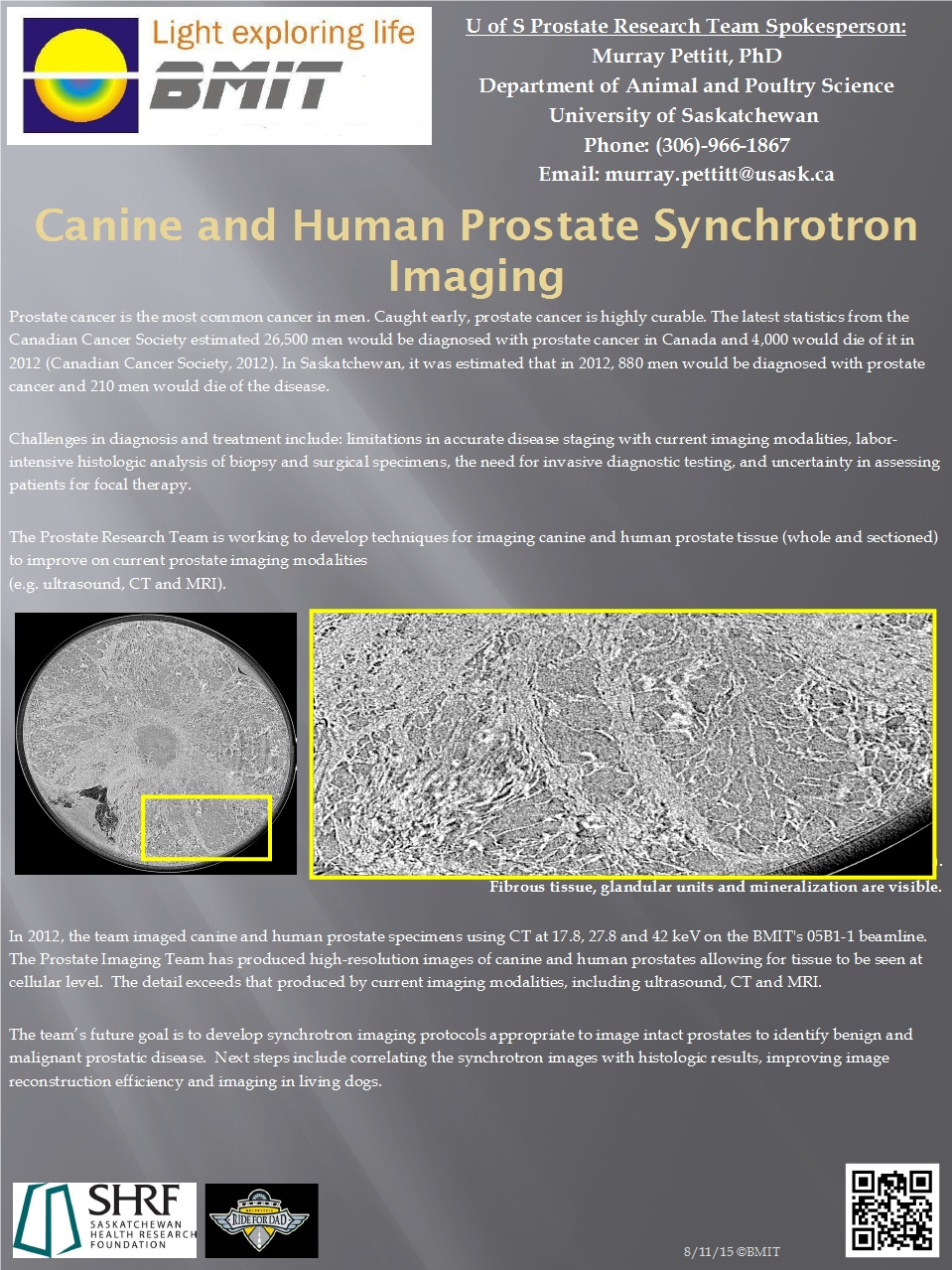 Canine and Human Prostate Synchrotron Imaging  Image
