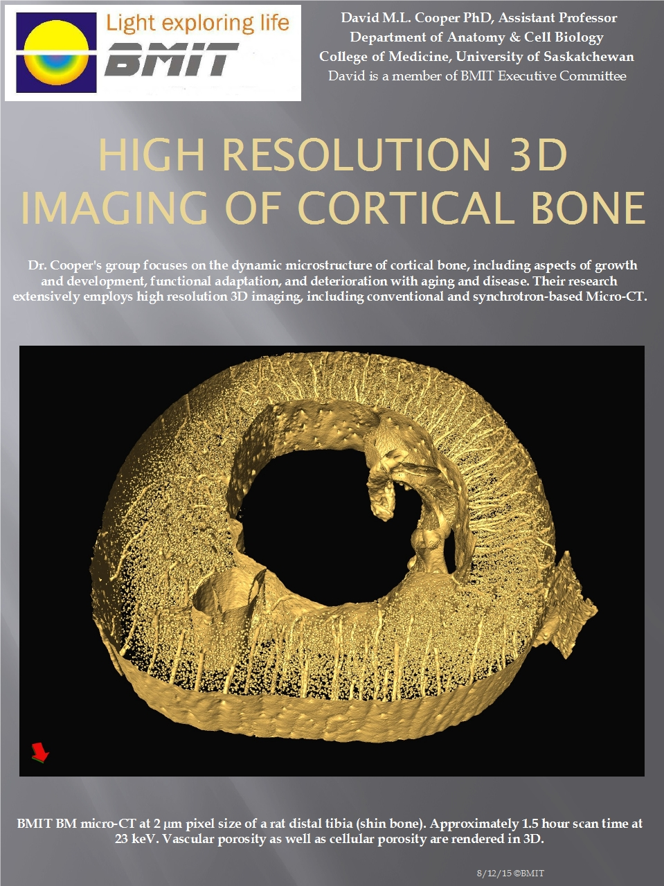 High Resolution 3D Imaging of Cortical Bone Image