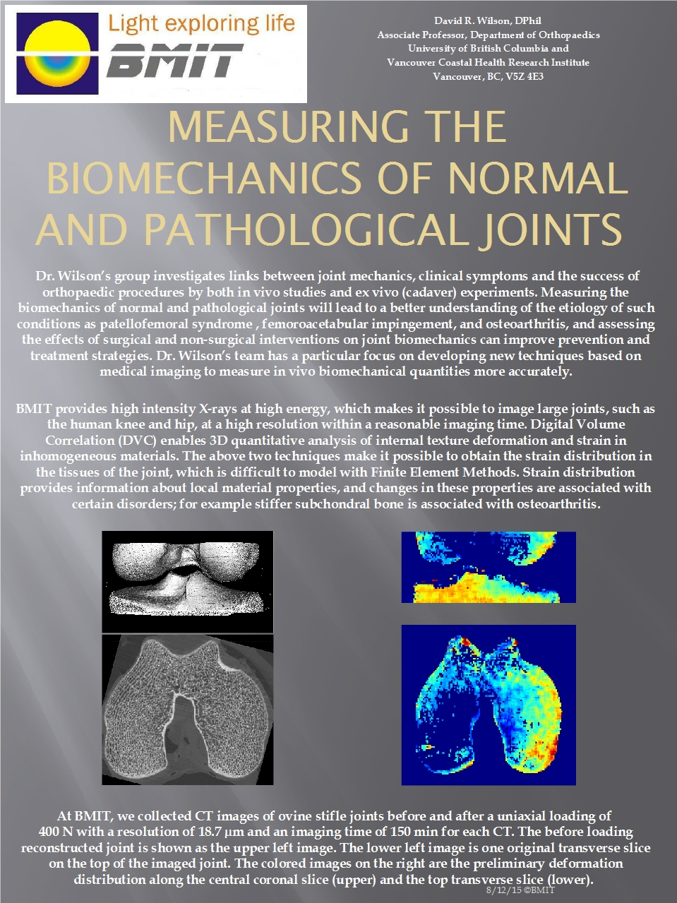Measuring the Biomechanics of Normal and Pathological Joints Image