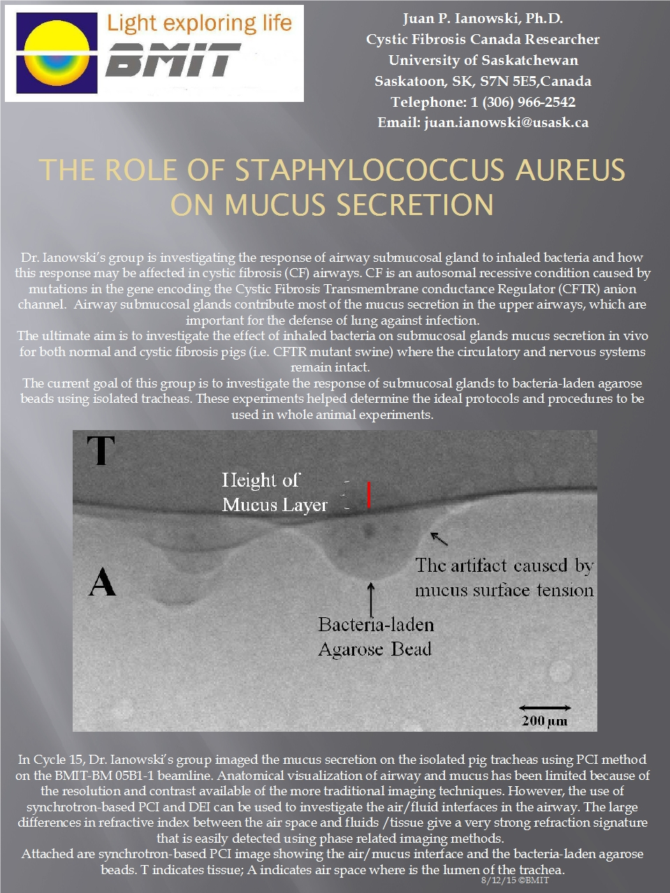 The Role of Staphylococcus Aureus on Mucus Secretion Image